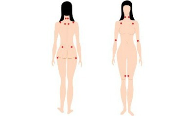 Diagnostico de la fibromialgia