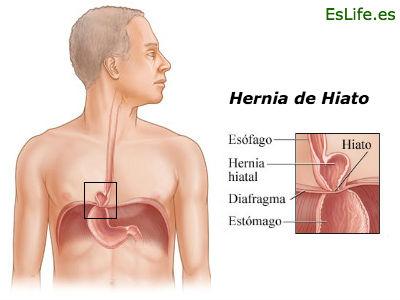 Hernia de hiato infografia