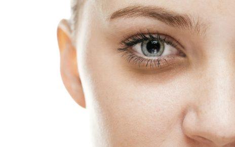 Remedios caseros para eliminar las ojeras