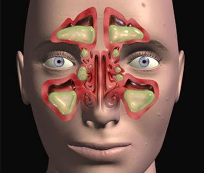 Tipos de sinusitis