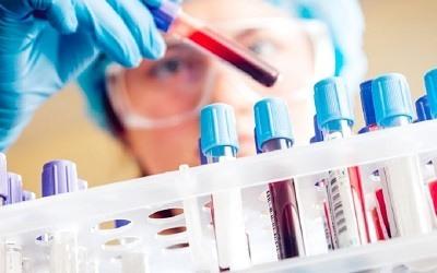 Analisis Sangre HCM Alto