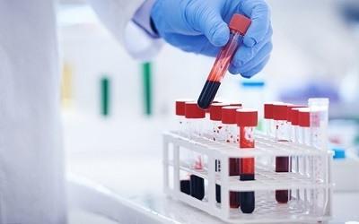 HCM Analisis Sangre