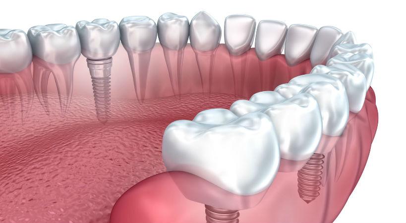 Implantes dentales tipos y precios