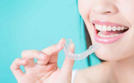 Ortodoncia Invisalign para deportistas