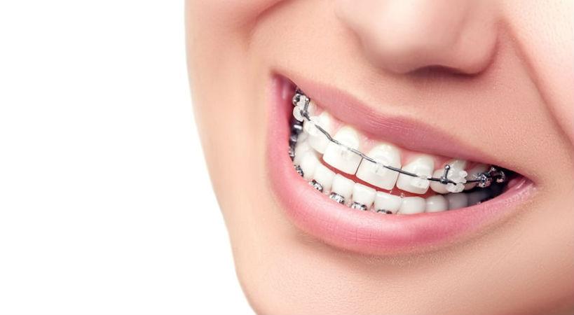 ortodoncia barcelona