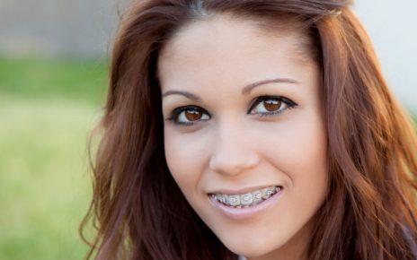 ortodoncia a edad avanzada