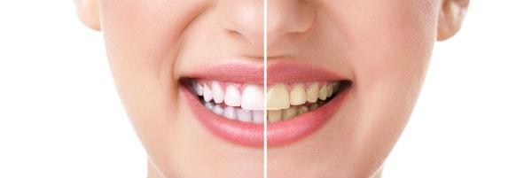 Dudas blanqueamiento dental
