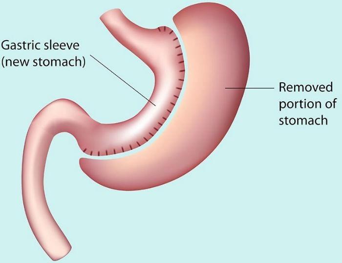Sleeve gastrico