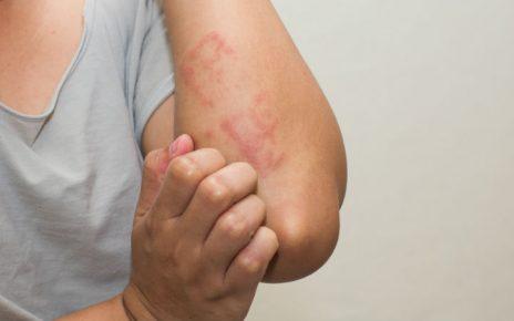 tratar dermatitis atopica
