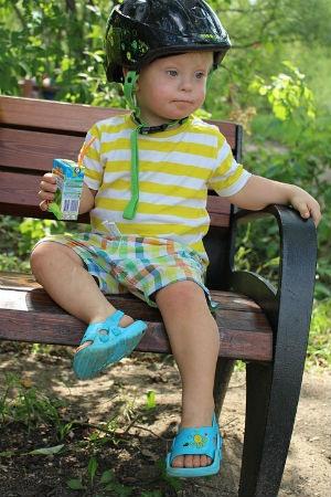 Deteccion temprana del Sindrome de Down