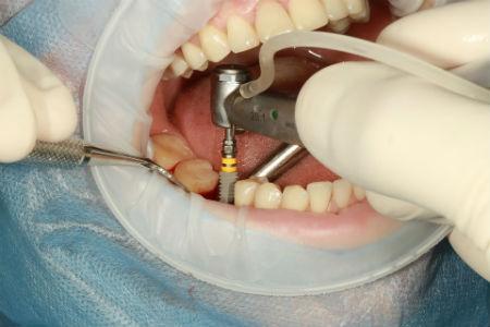 Los implantes son seguros y duraderos