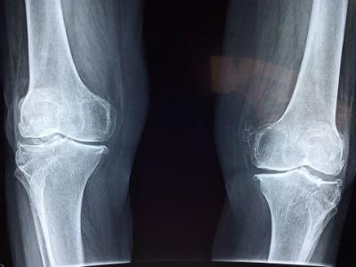 Lesión de rodilla complicada